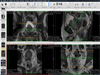 OsiriX Lite 11.0.3 Screenshot 1